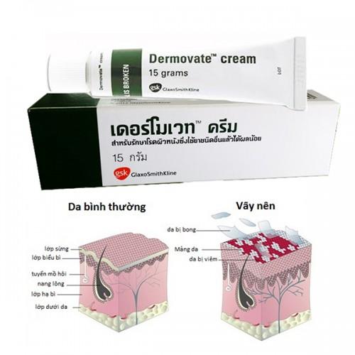 Kem Trị Vảy Nến Dermovate Cream 15g Thái Lan