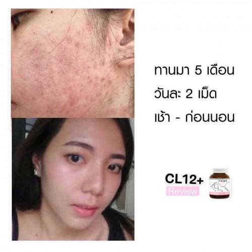 Viên uống trị mụn trắng da CL Collagen by Prime dạng hủ - loại mới