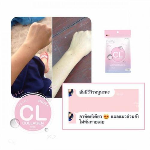 Viên uống trị mụn trắng da CL Collagen by Prime